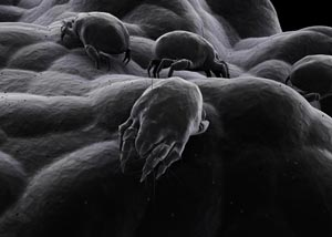 A microscope view of dust mites, enlargened.